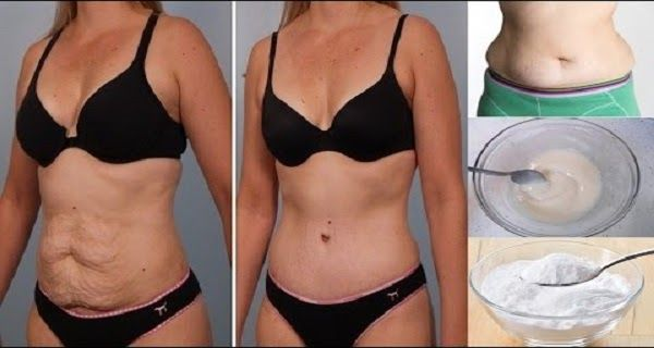 5-ways-baking-soda-can-help-you-lose-armthighbelly-and-back-fat