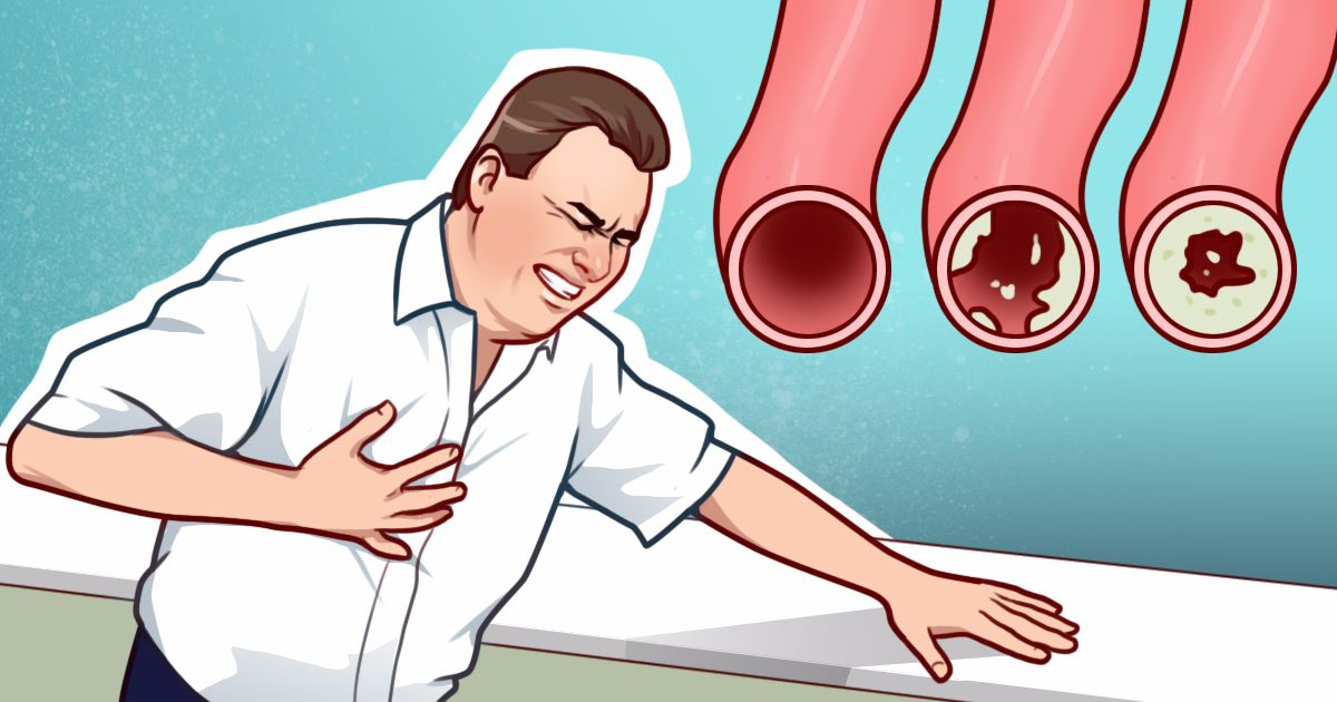10 Foods That Will Clean Your Arteries and Protect From Heart Attacks