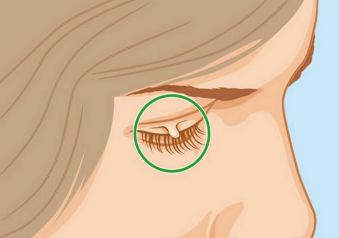 7-easy-ways-to-remove-skin-tags-without-seeing-a-doctor