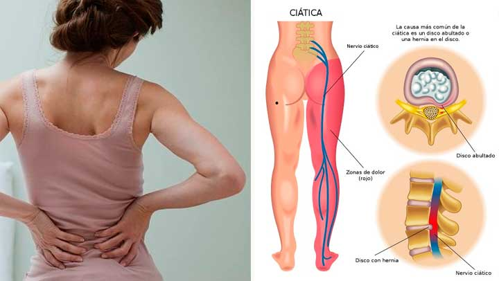 the-best-8-cures-for-sciatica-much-better-than-any-pain-killer