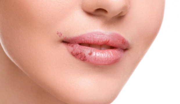 how-to-get-rid-of-that-annoying-cold-sore-fast-without-going-to-the-pharmacy