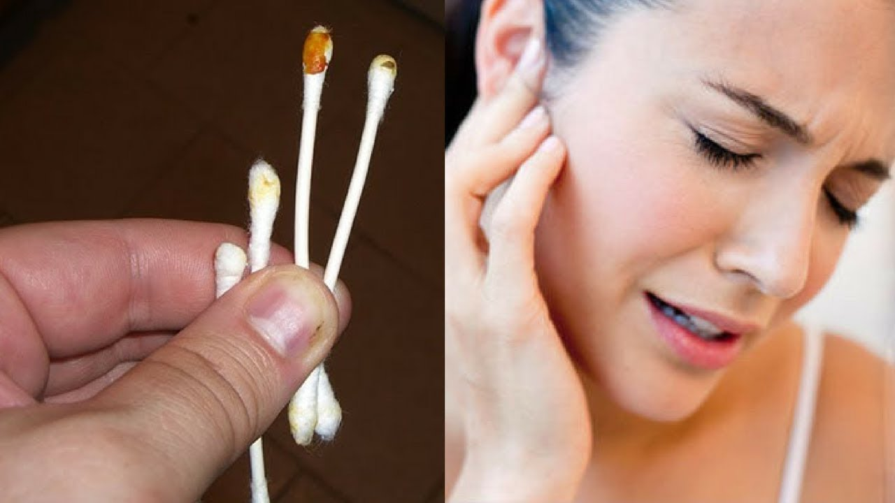 the-color-of-your-earwax-reveals-everything-about-your-health