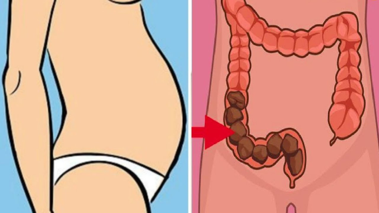 every-woman-need-to-know-the-warning-signs-of-crohns-disease